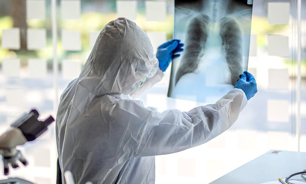 Radiografías para detección de COVID-19 y enfermedades pulmonares con inteligencia artificial
